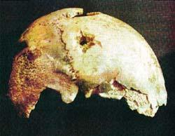 Fragmento do crânio de Hitler com buraco da bala.